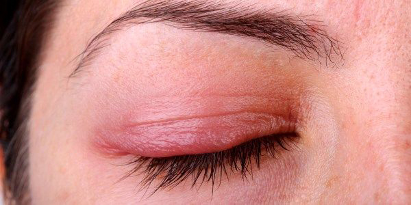 Contact Dermatitis آماس پوست